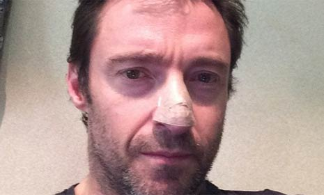 Hugh Jackman reveals skin cancer news on Twitter