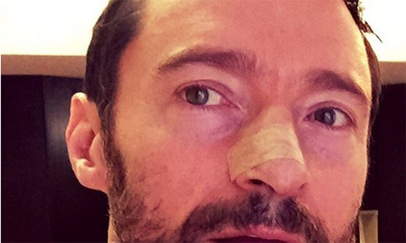 Hugh Jackman treated for skin cancer on his nose for fourth time