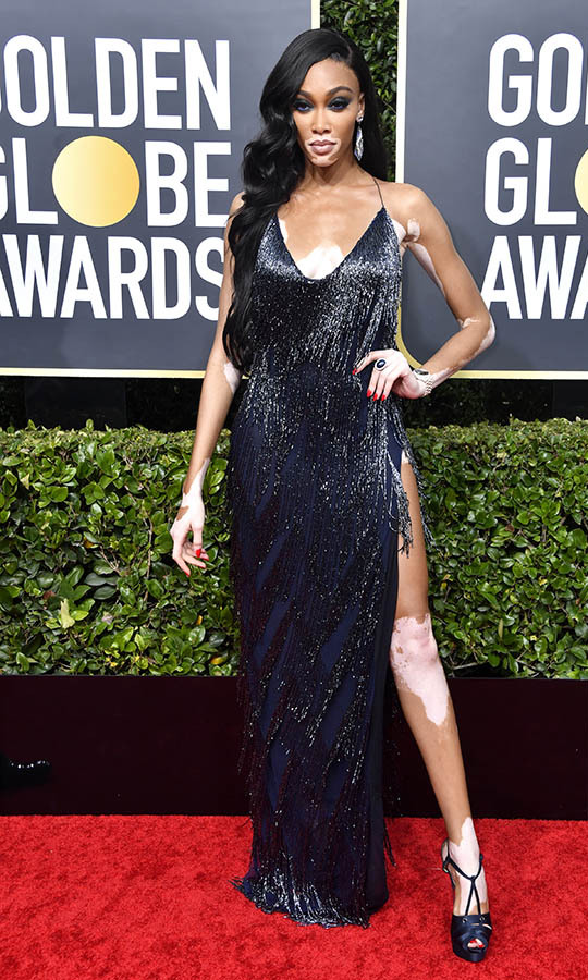 Canadian model <a href=/tags/0/winnie-harlow><strong>Winnie Harlow</strong></a> stunned in a black fringed dress with leg-revealing slit. <p>Photo: &copy; Frazer Harrison/Getty Images