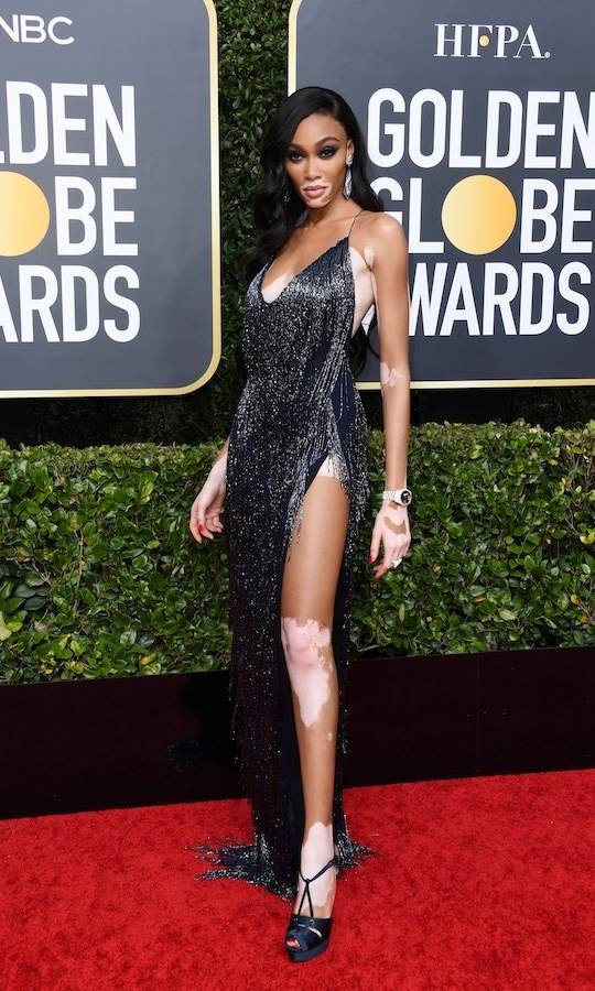 <h2>Winnie Harlow</h2>