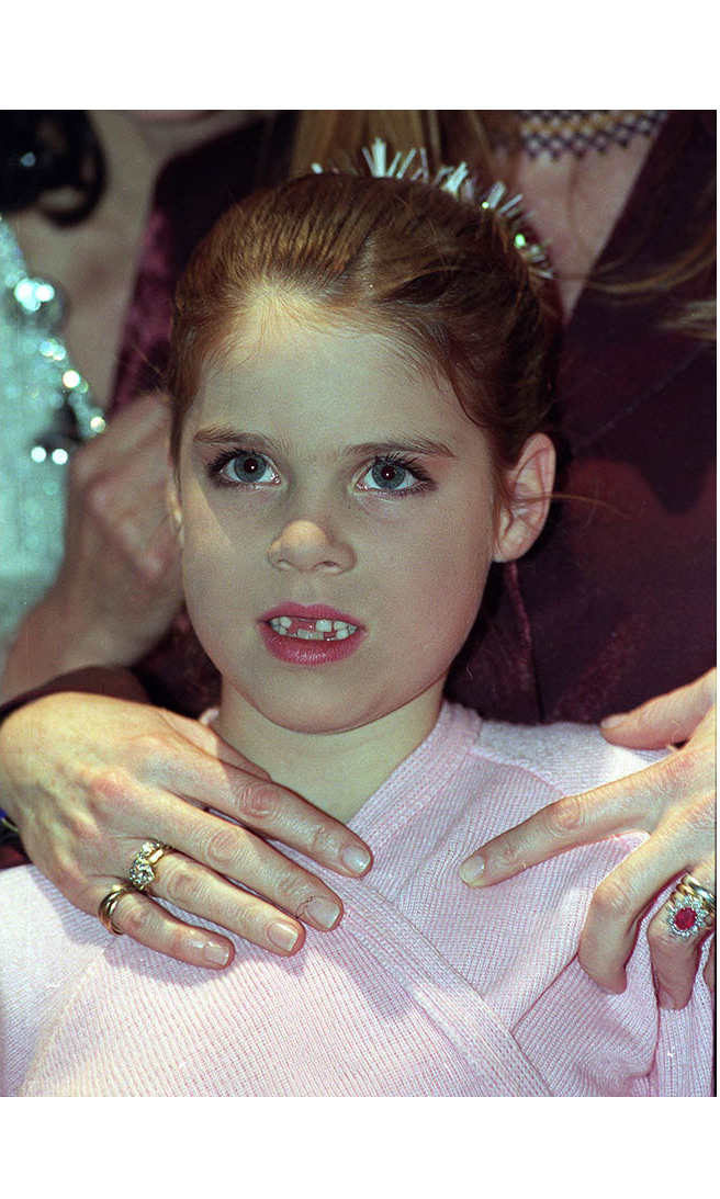 Eugenie showed off her missing teeth at a Christmas Extravaganza In Aid of Children In Crisis at The Drury Lane Theatre in London in December 1998. 